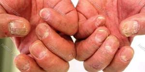 乾癬の爪症状