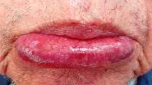 萎縮性口唇炎