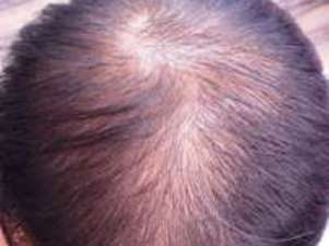 男性型脱毛症(AGA)のイメージ