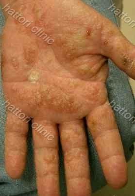 異汗性湿疹